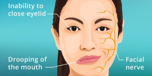 bells palsy with eye complications