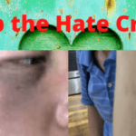 Stop the Hate Crime